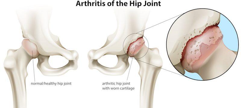 Reprezentare grafică a coxartrozei, artrozei șoldului