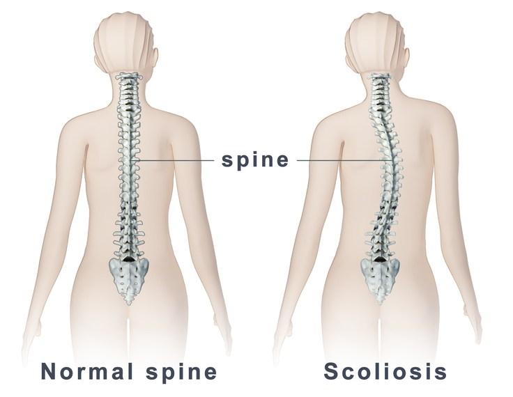 Coloană vertebrală plantară