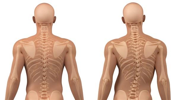 Coloana vertebrală afectată de scolioză - reprezentare grafică