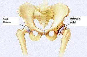 Tratarea nămolului cu artroză la genunchi - Рубрика: Tratamentul osteoartritei șoldului video